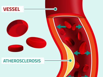 What is arteriosclerosis