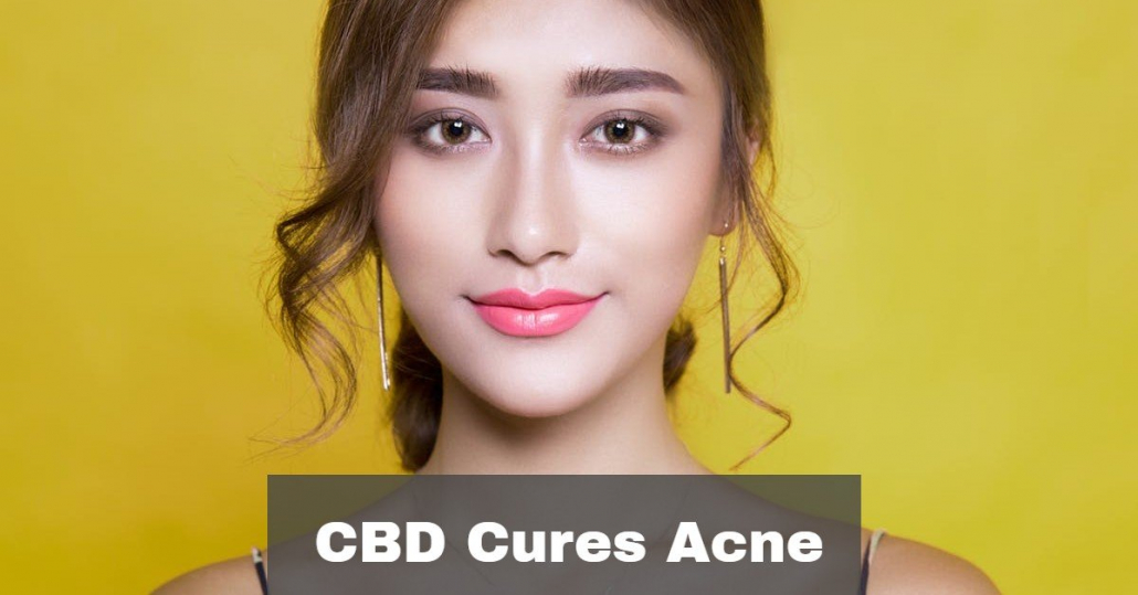 CBD for acne treatment