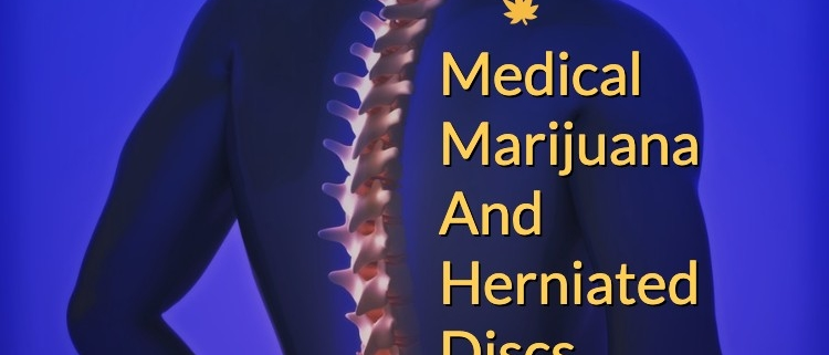 Cannabis And Herniated Discs