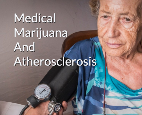Medical Marijuana And Atherosclerosis